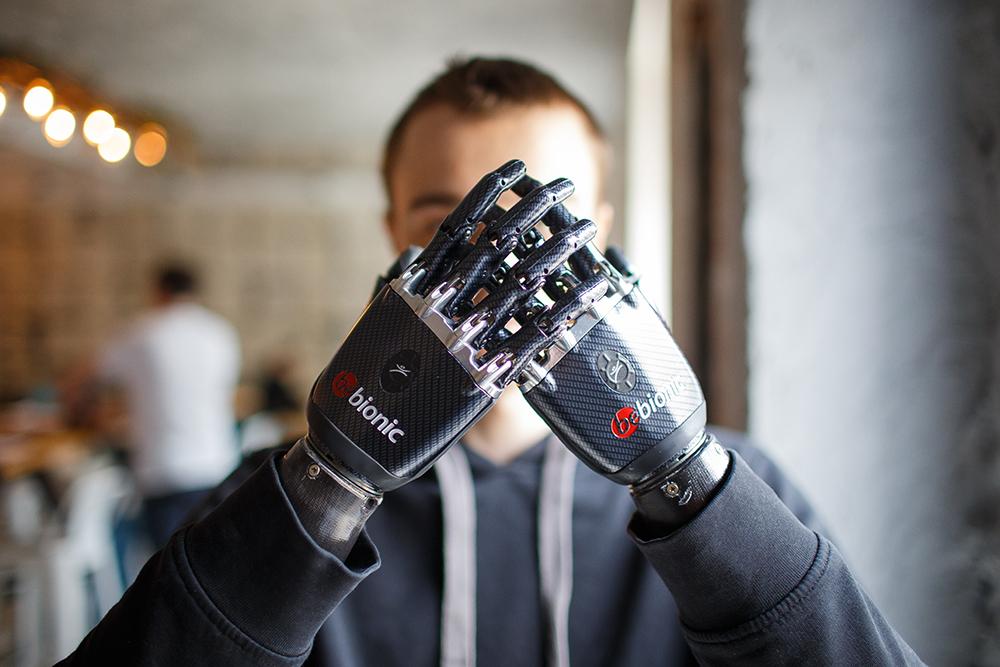 Бионические протезы