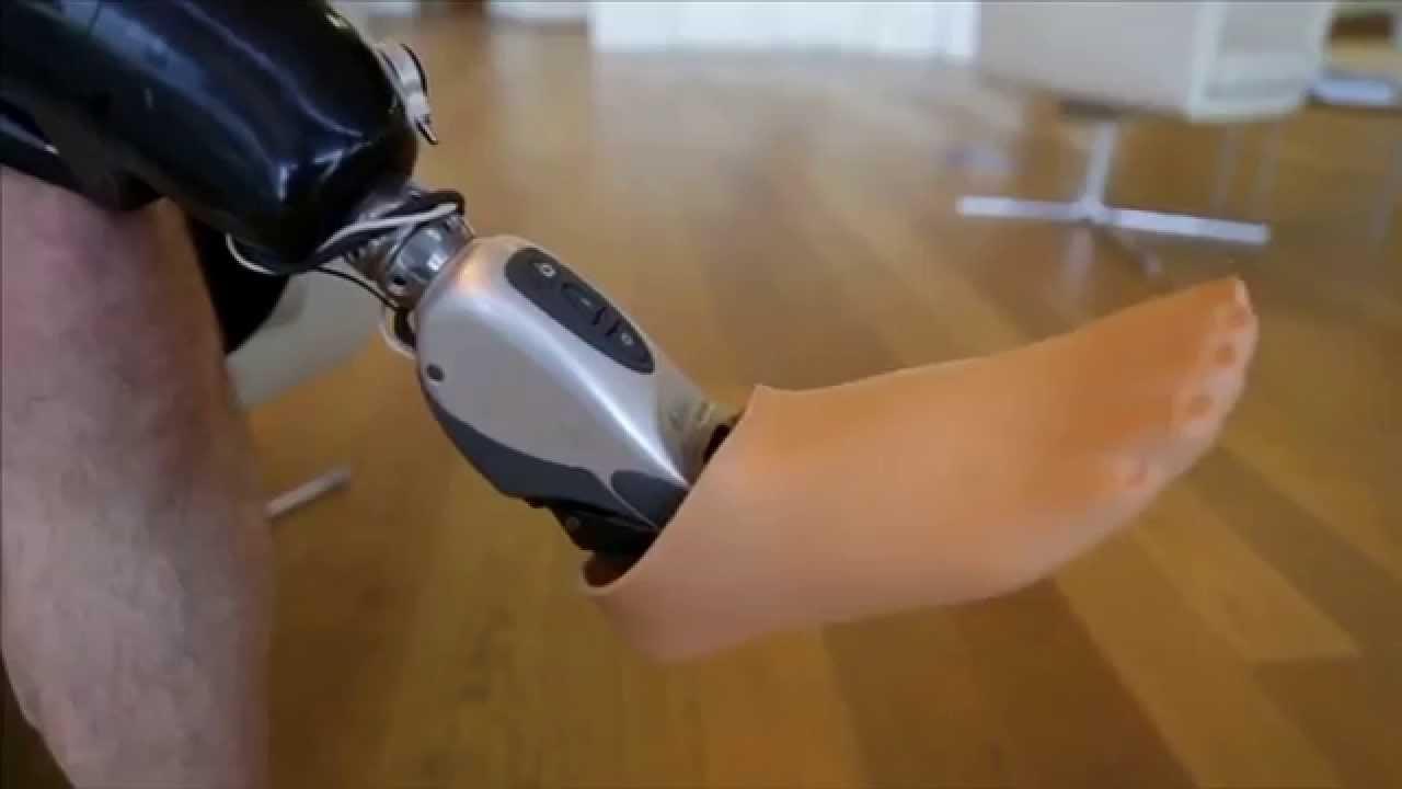 Бионический протез Ossur