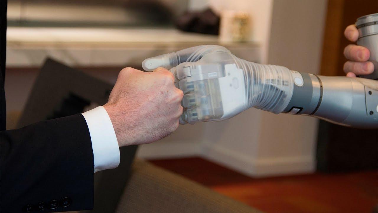 Бионический протез кисти