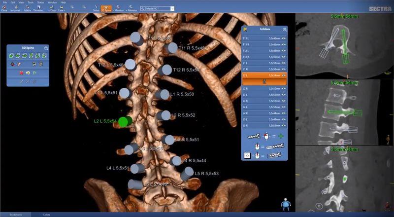 цифровая модель органов человека